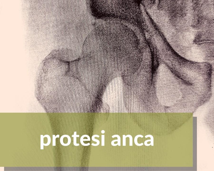protesii all'anca